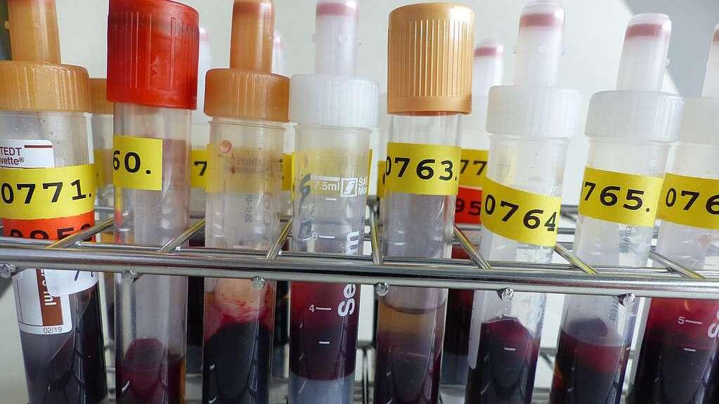 Röhrchen mit Blutproben